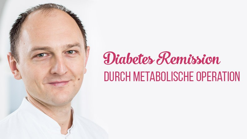Diabetes effektiv behandeln mit Magenbypass?
