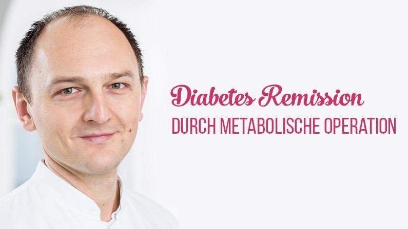 Diabetes effektiv behandeln mit Magenbypass?