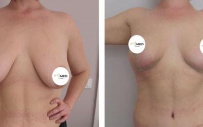 Bruststraffung nach Gewichtsverlust vs. ohne Abnahme