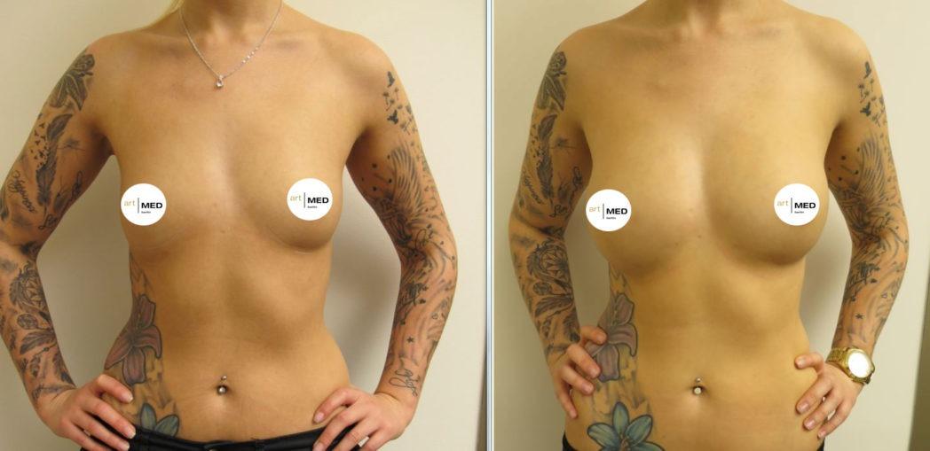 Brustvergrößerung mit Eigenfett nach Abnahme