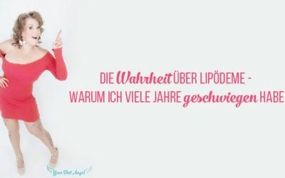 Die Wahrheit über (meine) Lipödeme XXL Edition