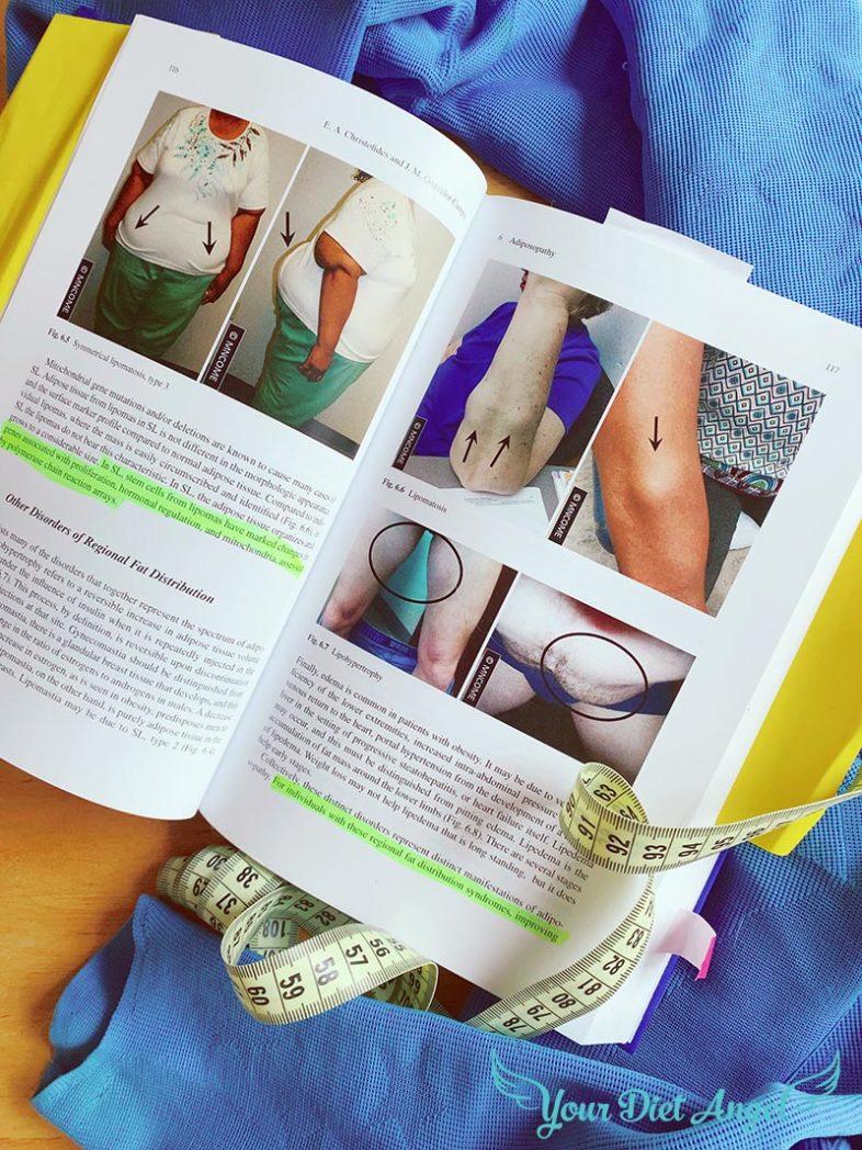 adipositas erkrankungen fettgewebe bilder1